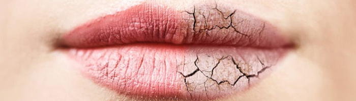 An image of dry chapped lips
